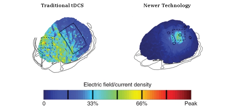 tDCS-old-vs.-new1